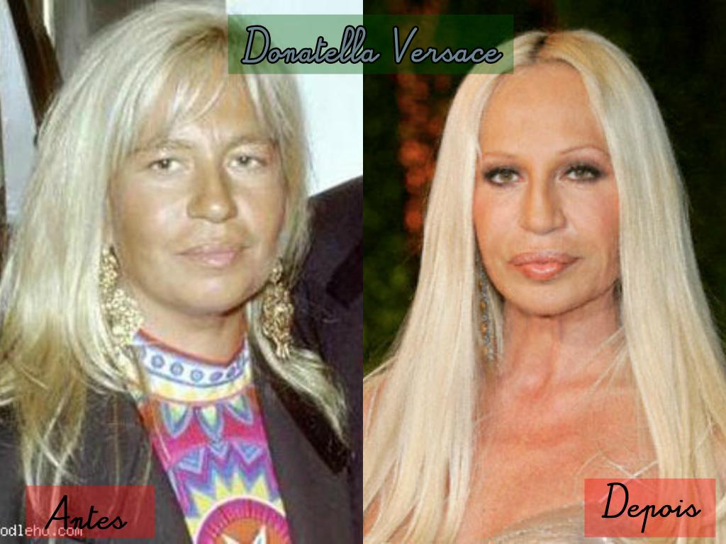 c8846a431 Donatella Versace passou por algumas mudanças drásticas em seu rosto graças  à cirurgia plástica. A diretora de criação da Versace é usuária constante  de ...