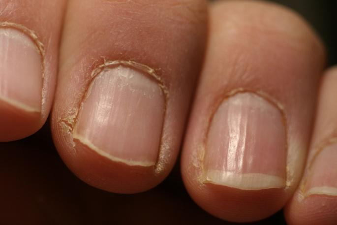 Red Alert: If You See This On Your Nails Immediately Visit A Doctor ...
