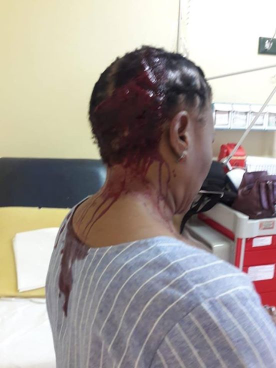 [Graphics Photos] Teacher hospitalised after irate parent allegedly beat her with umbrella