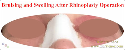 When Is Bruising the Worst after Rhinoplasty? - How Long Should Bruising Last After Rhinoplasty? - Bruising After Rhinoplasty - Swelling After Rhinoplasty - Errors After Rhinoplasty - Mistakes After Rhinoplasty Operation - Rhinoplasty Recovery - Rhinoplasty Healing Time,