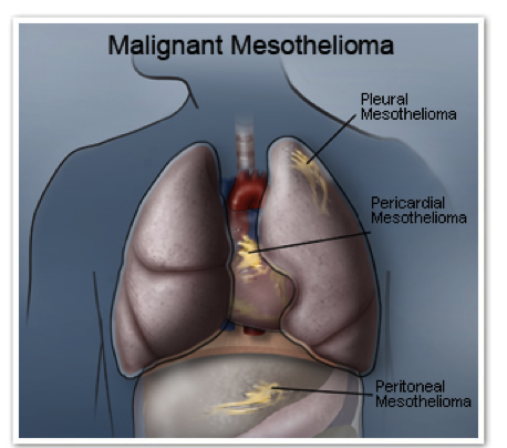 Malignant Mesothelioma Wikipedia