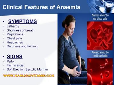 bahaya anemia @ Hb rendah sewaktu hamil