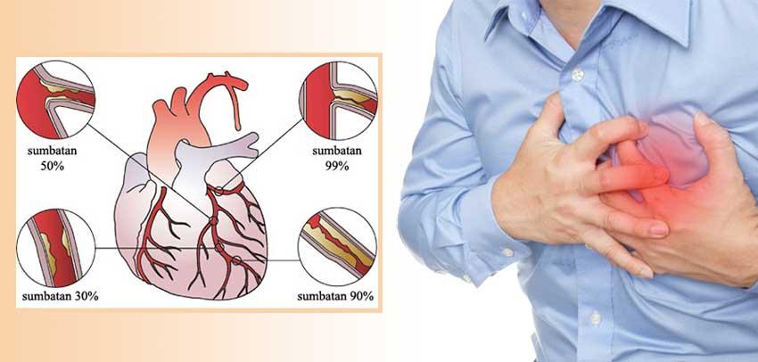 Cara Membuka Sumbatan Arteri Koroner Jantung Selain Operasi
