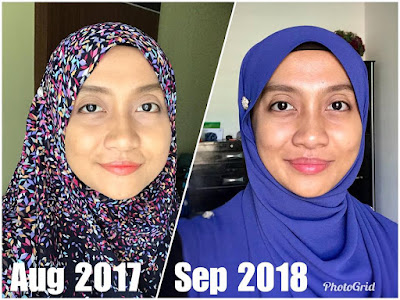 Testimoni Full Set YOUTH Puan Nadiah Suhaidi