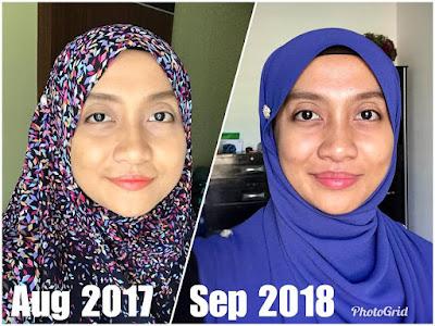 Testimoni Full Set YOUTH Puan Nadiah Suhaidi