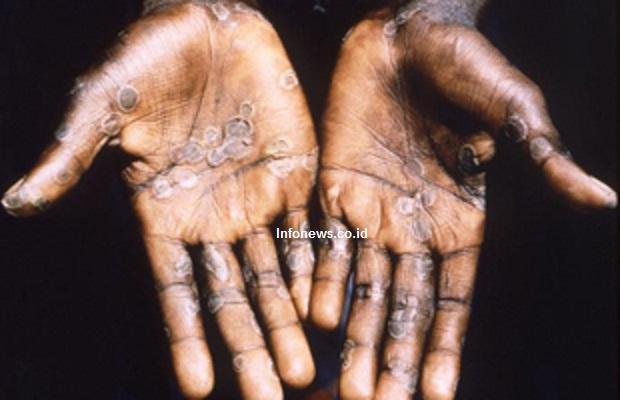 Fakta-fakta Wabah Monkeypox atau Cacar Monyet