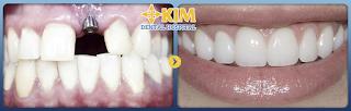 Làm răng implant mất bao lâu