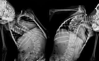 Scoliosis Implikasi Tulang Belakang