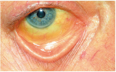 Yellow Sclera of Jaundice