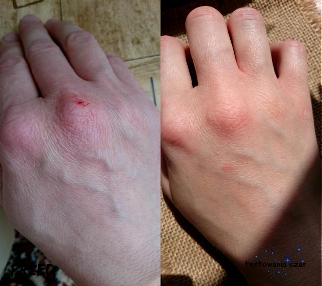 sucha, pękająca skóra dłoni, testowania czar