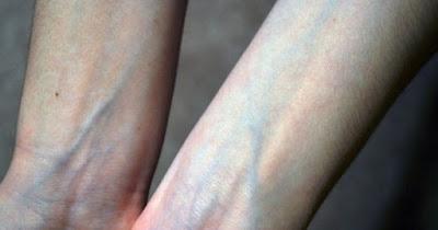 Nổi gân xanh trên cơ thể là bị bệnh gì