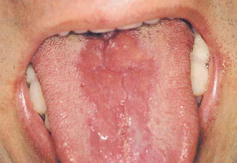 Perioral Dermatitis - Healthline