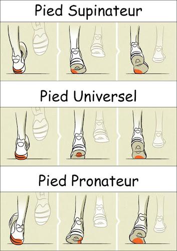 Choix des chaussures de running
