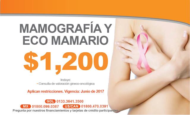 Mes de la Prevencion del Cancer mamario.  Mamografia eco mamario Mastografia en Guadalajara Mexico