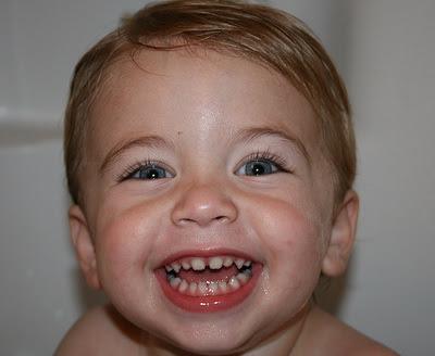 Fakta Seputar Gigi Susu di Bayi