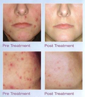 Acne аnd Alternative Acne Treatments