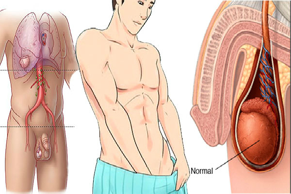 ALERT! Symptoms Of Testicular Cancer Not To Be Overlooked