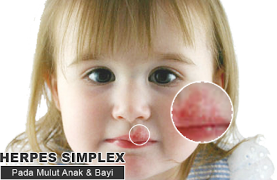 Apa Virus Penyebab Herpes Kulit Zoster, Genitalis, Dan Simplex