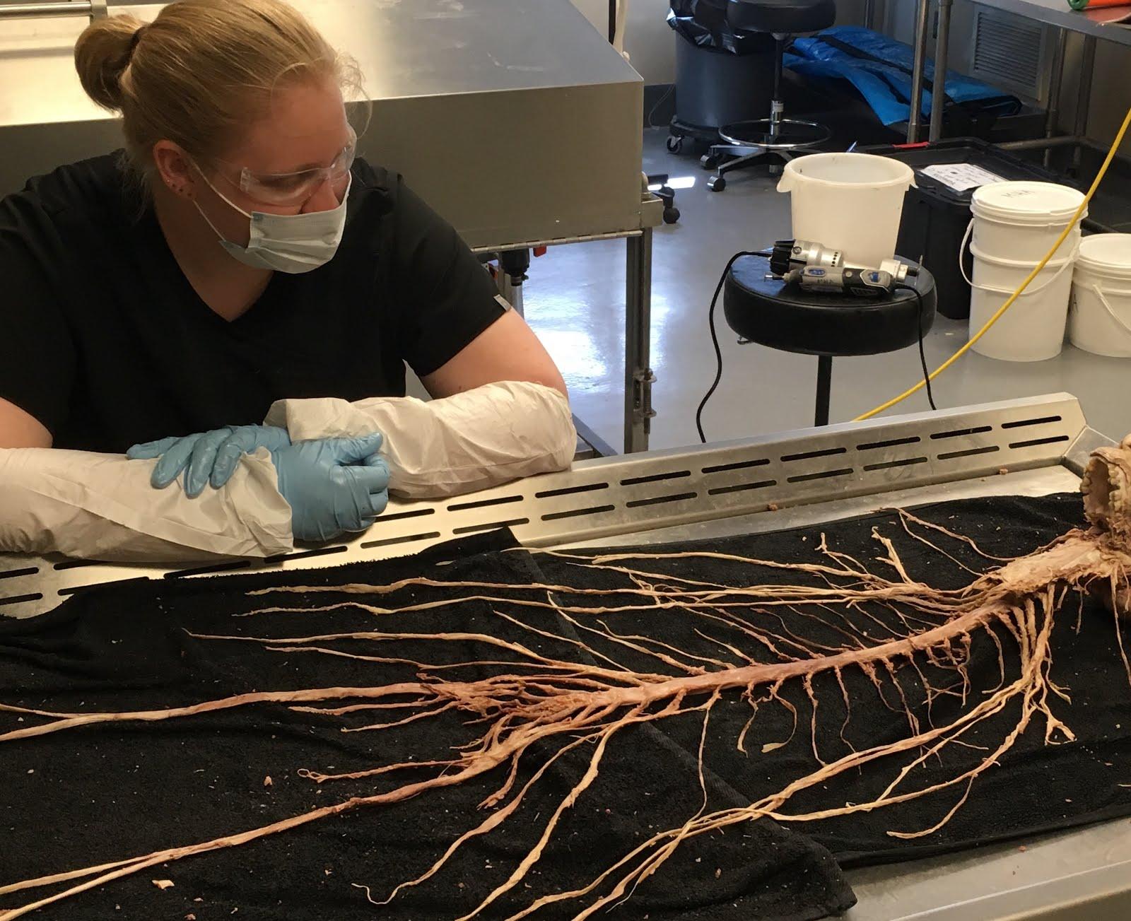 Neuropathology Blog Remarkable En Bloc Dissection Of