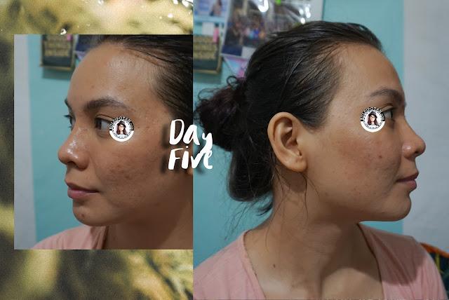 Sabun+muka+untuk+kulit+berjerawat+berminyak