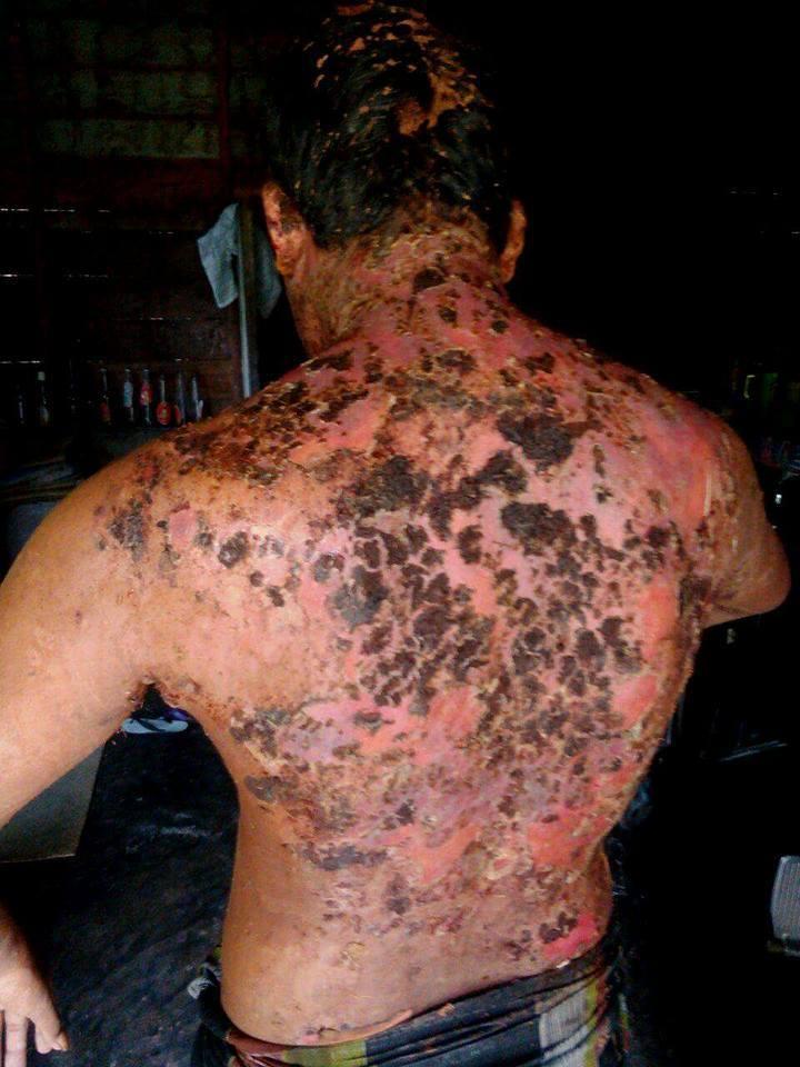 Pak. Marzuki Pasien Pendampingan LPD Meninggal Dunia
