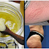 Stretch Marks Problem? Use This Very Effective Scrub To Get Rid Of It Within A Month