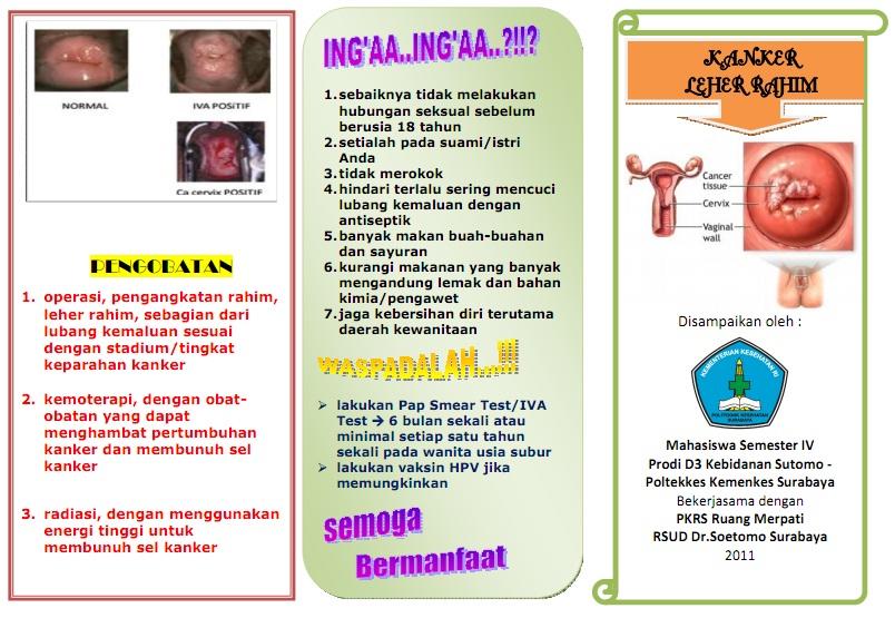 Image Result For Kanker Serviks Pada Anak