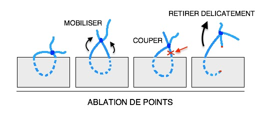 technique ablation retrait point fil infirmier pansement