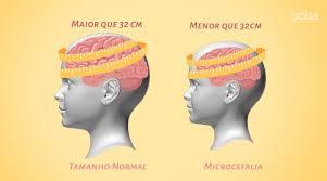 Microcefalia - O que é? Como é diagnosticada a Microcefalia?
