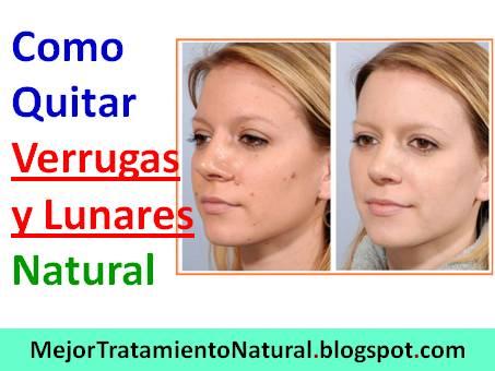 Como Quitar Verrugas y Lunares Naturalmente: Sin Verrugas ...