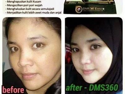 Rahsia Kecantikan Saya Bersama Produk DMS360