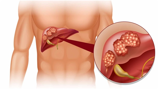 Liver transplant: Facts, Preparations and Procedures