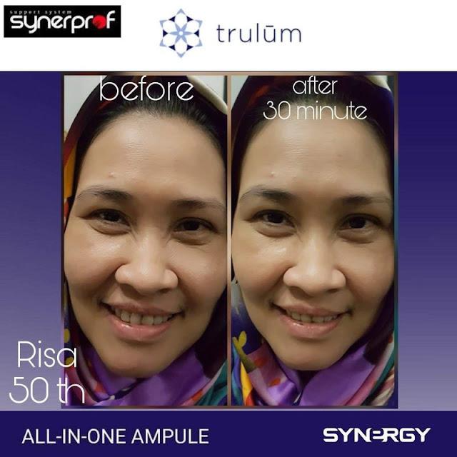 Bebas Bopeng Bekas Jerawat, Flek Hitam Tanpa Harus Laser Atau Ke Tempat Skin Care Di Lima Puluh Kota Pekanbaru