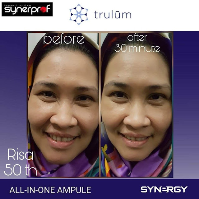 Bebas Bopeng Bekas Jerawat, Flek Hitam Tanpa Harus Laser Atau Ke Tempat Skin Care Di Pekalongan Jawa Tengah