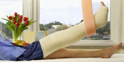 Image result for tulang patah