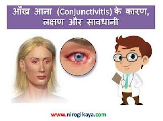 Conjunctivitis causes treatment in Hindi