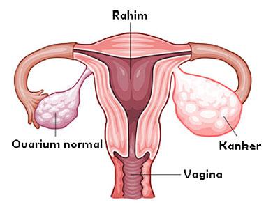 Kanker Ovarium kanker yang menyerang kaum wanita yang paling banyak merenggut nyawa