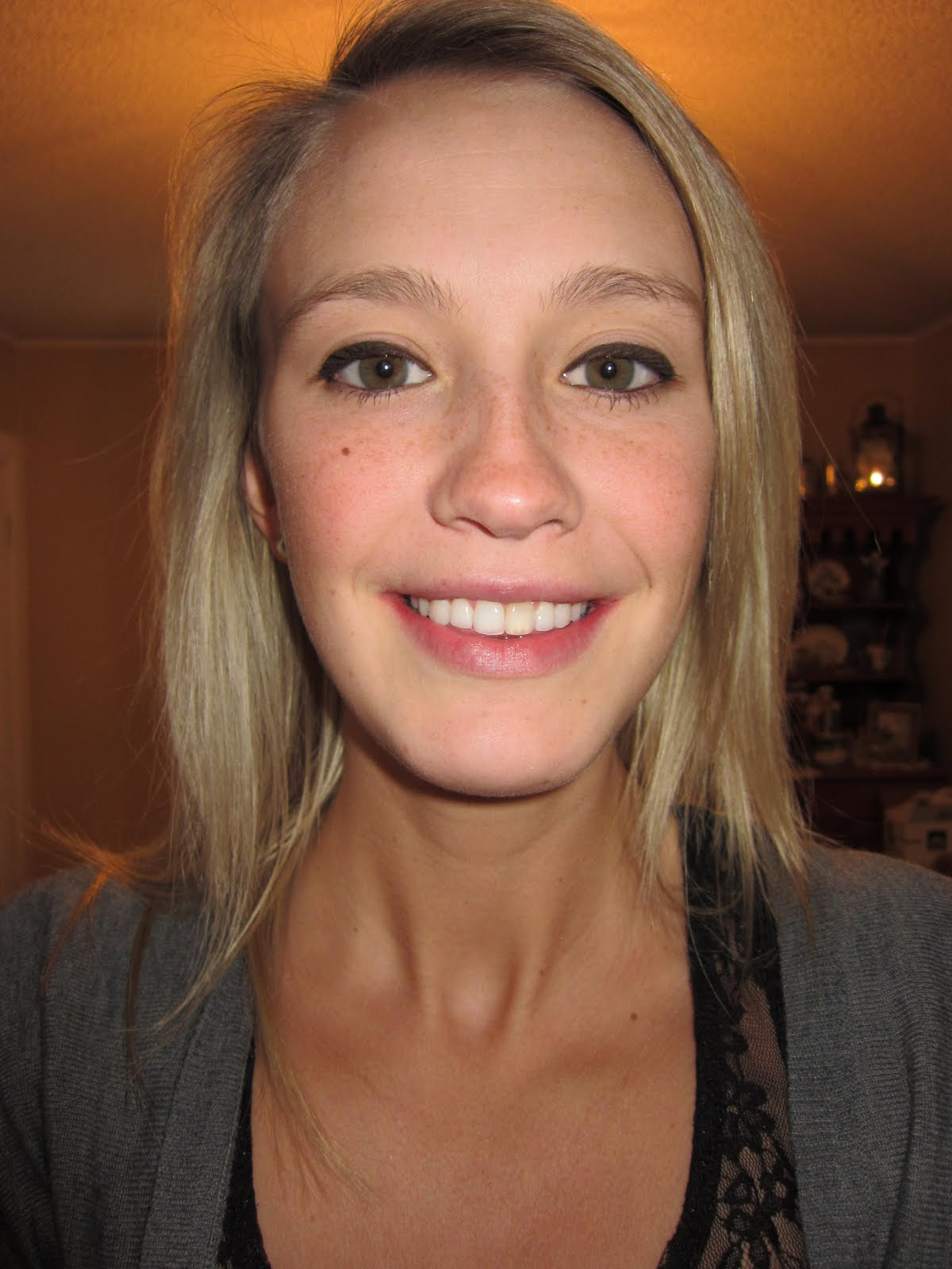 DEBRACED!   emBRACING it - a braces and jaw surgery diary