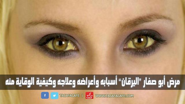 """مرض أبو صفار """"اليرقان"""" أسبابه وأعراضه وعلاجه وكيفية الوقاية منه"""