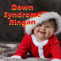 Ciri Down Syndrome Ringan
