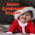 Simak Beberapa Ciri Down Syndrome Ringan Terbaru