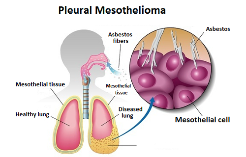What Are the Symptoms of Pleural Mesothelioma?