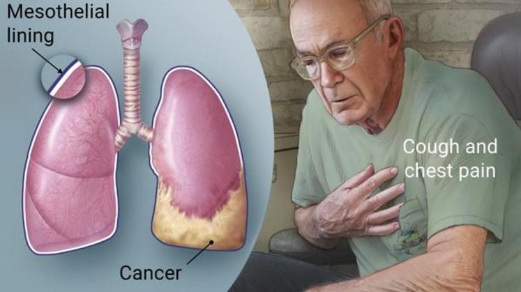 What is Mesothelioma Cancer