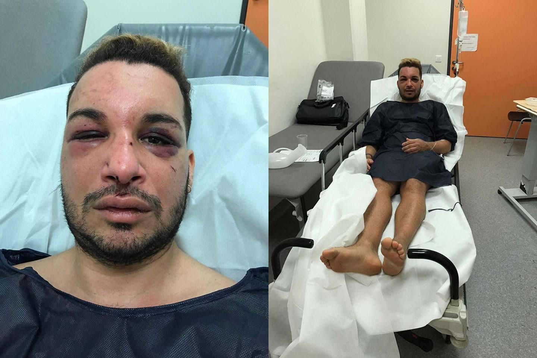 Ativista LGBT é sequestrado, agredido e estuprado por dois dias na França