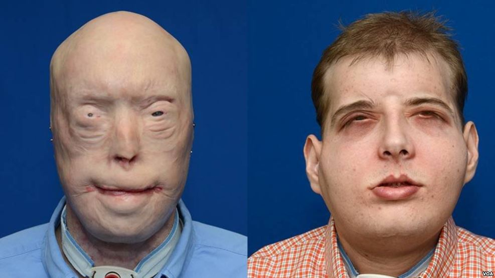 Firefighter from Mississippi Gets New Face, Received The 'Most Extensive' Face Transplant In the World