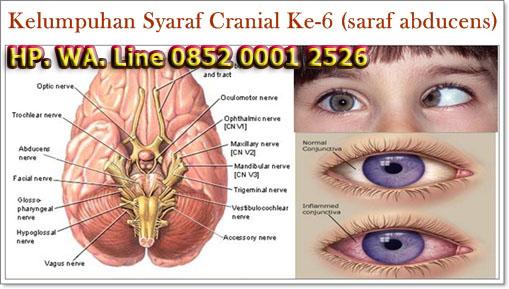 Cara Mengobati Kelumpuhan Syaraf Cranial Ke-6 (saraf abducens)