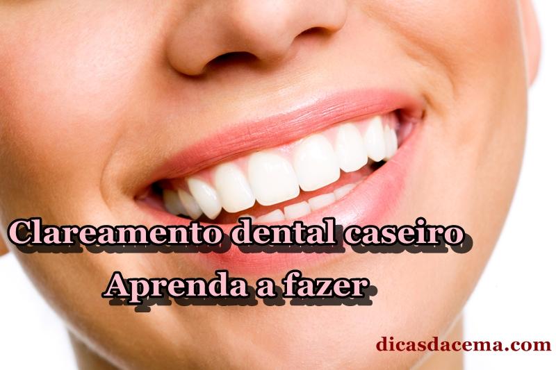 Dicas Da Cema Clareamento Dental Caseiro Como Fazer