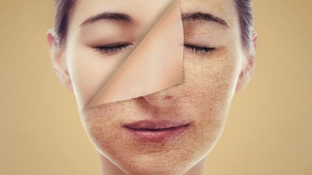 Penyebab dan Cara Mudah Mengatasi Kulit Wajah Kering Secara Alami