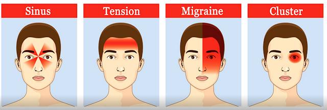 Penyebab Sakit Kepala yang Sangat Menyiksa