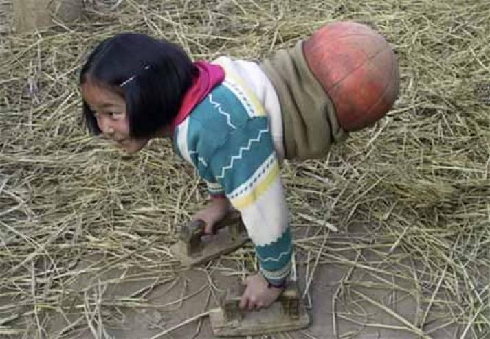 ولدت بدون ساقيين ولكن ما حققته سيجعلك تصدق أن كل شيء ممكن! يسميها أهل منطقتها فتاة كرة الطائرة! لماذا !